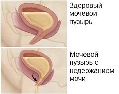 Недержание мочи после операции по удалению аденомы простаты ...