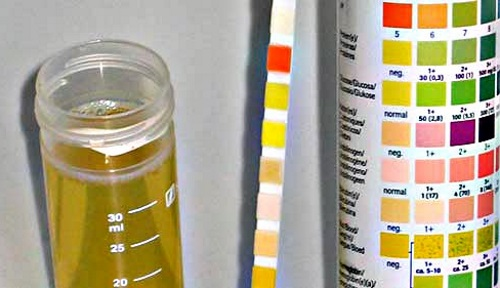 Тест по полоски анализа мочи справка кэк москва