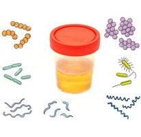 Анализ мочи, бактерии