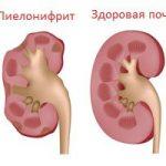 Латентный пиелонефрит