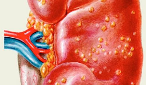 Причины болевого синдрома в почках