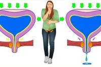 Стрессовое недержание мочи у женщин
