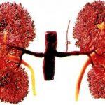 Туберкулез почек симптомы