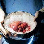 Трансплантация почки в россии стоимость