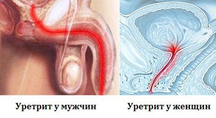 Уретрит