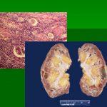 Быстропрогрессирующий гломерулонефрит
