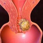 Рак уретры симптомы у женщин
