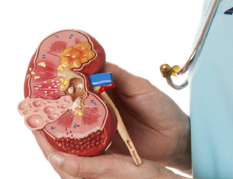 Макет почки в руках у врача