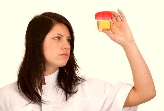 Девушка держит в руках контейнер с анализом мочи